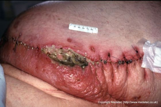 Infected dehisced surgical wound to abdomen in obese ...